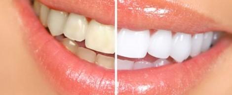 Jak si vybrat gel na domácí bělení zubů?