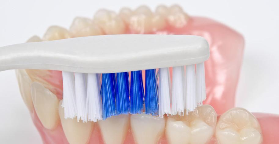 Druhy snímatelných zubních náhrad