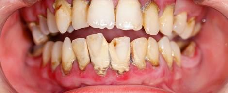 Parodontitida – jak vzniká a co s ní?