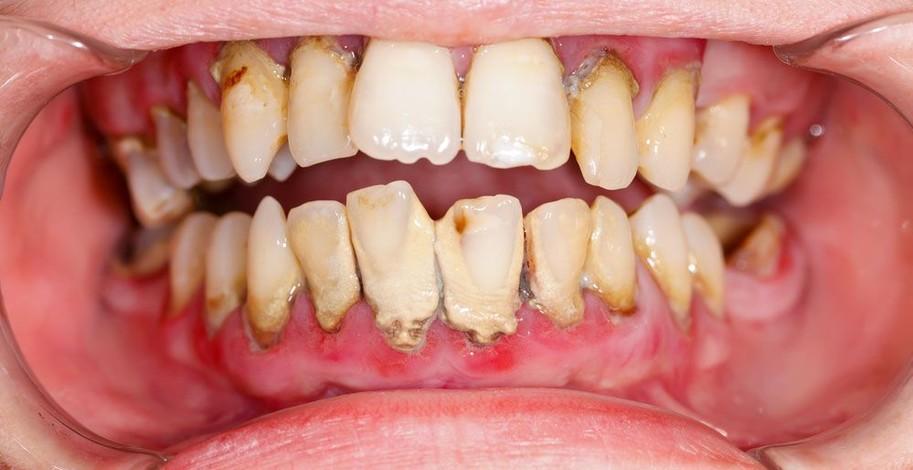 Parodontitida