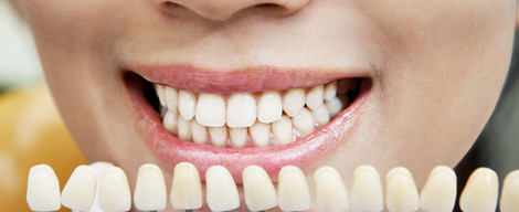 Co všechno ovlivňuje odstín zubů?