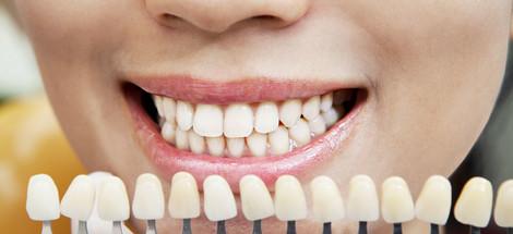 Zuby a jejich odstíny