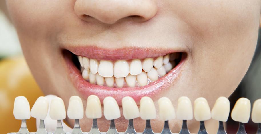 Různé odstíny zubů