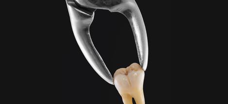 Trhání zubů moudrosti se často nevyhneme
