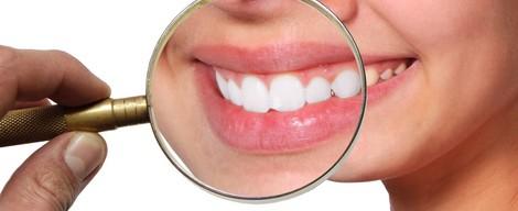 Na co se nejčastěji ptáte o bělení zubů