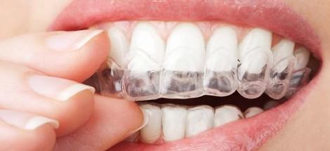 Chci si bělit zuby doma, jaké jsou možnosti?